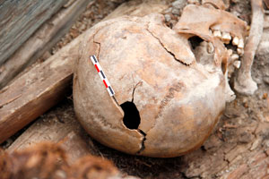 Hole in the crown of the human skull, Tomb No. 9